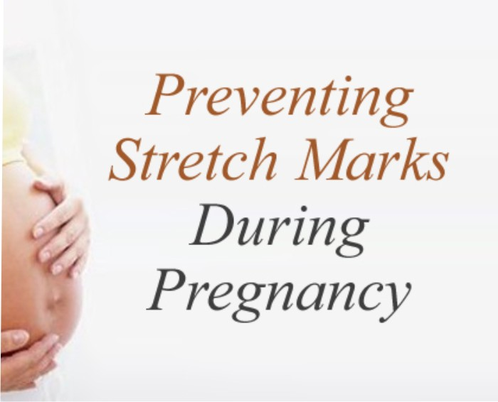 Preventing stretch marks in pregnancy